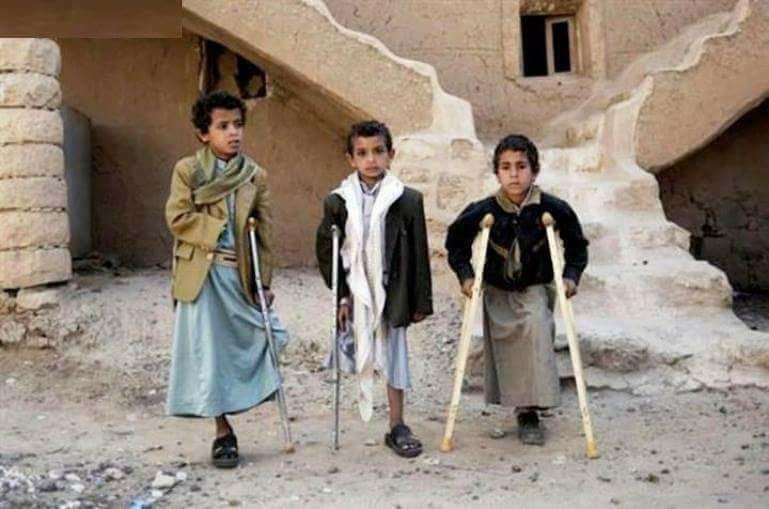 Niños mutilados por minas antipersona