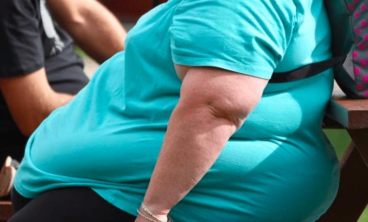 Más de la mitad de los enfermos por covid-19 ingresados en UCI tienen sobrepeso - Foto de archivo